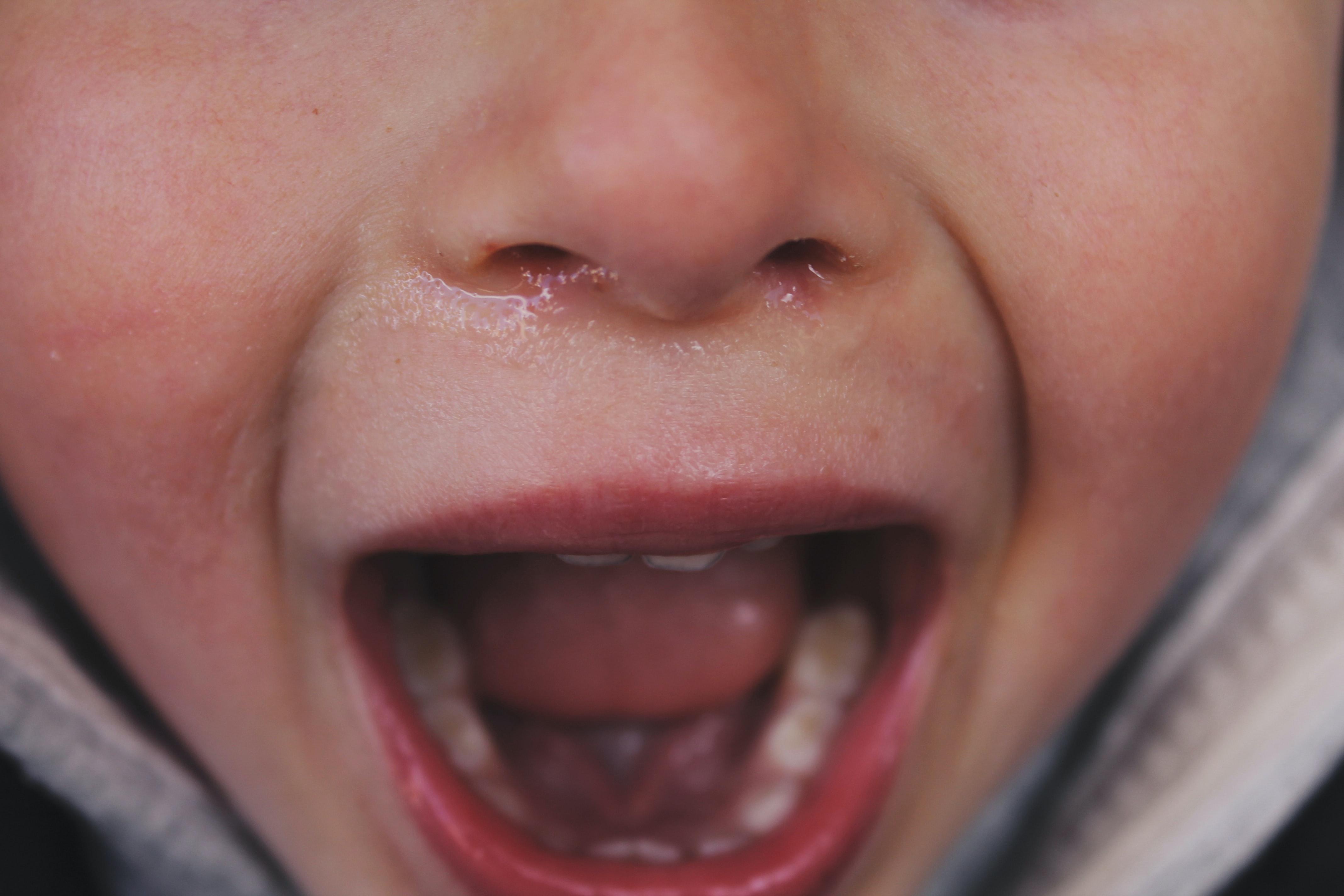 Child screaming